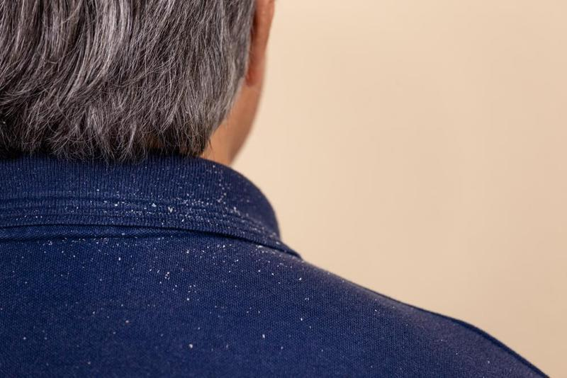 Here Is What You Need To Keep In Mind While Looking For Anti Dandruff Shampoo